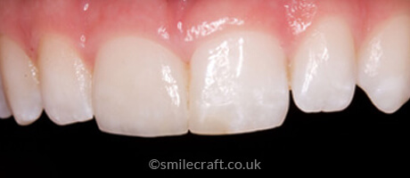 after veneer treatment
