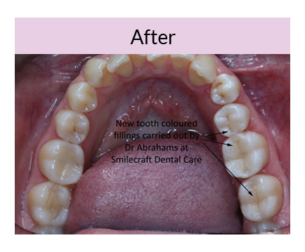 White Fillings Smilecraft Dental Care